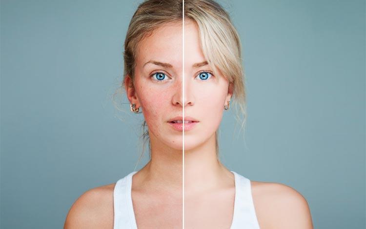 Rekomendasi Skincare Untuk Kulit Berminyak dan Berjerawat