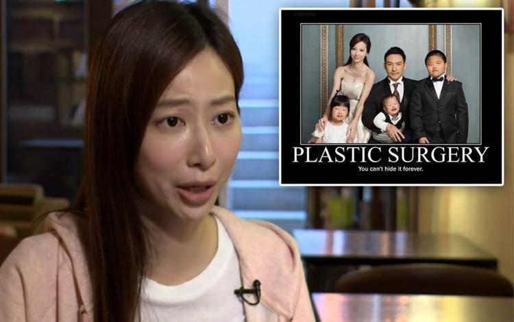 Fakta Foto Keluarga Operasi Plastik di Cina